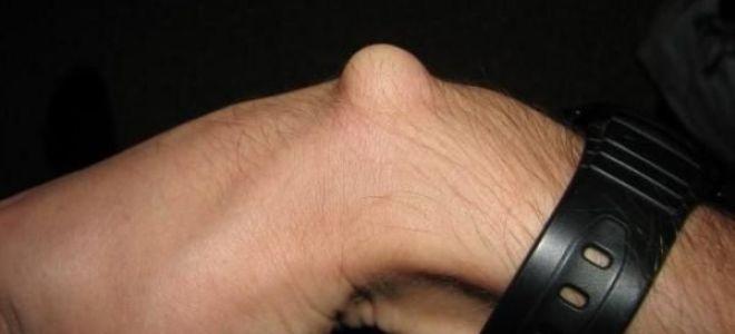 Шишки на запястьях рук: причина появления уплотнений и методы лечения