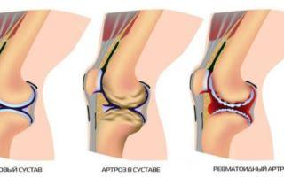 Особенности деформирующего остеоартроза суставов и его степени