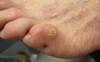 Боль в мизинце на ноге