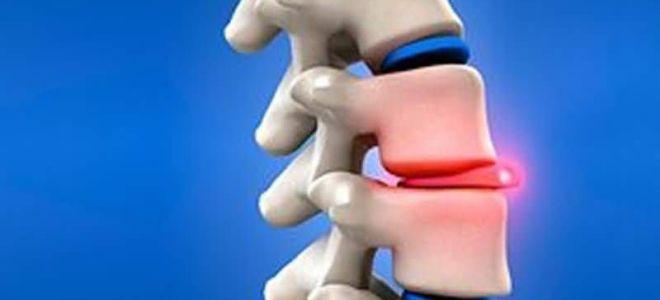 Что такое дефекты Шморля в телах позвонков: развитие заболевания, методы эффективного лечения