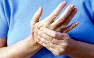 Онемение пальцев рук ночью
