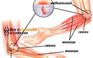 Заболевания локтевых суставов