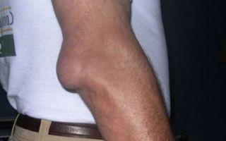 Лечение бурсита локтевого сустава в домашних условиях: от теории к практике