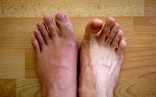 Грамотное лечение подагры в период обострения