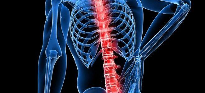 Что такое невралгия спины и чем ее лечить: причины заболевания, эффективные методы лечения