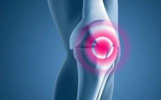 Что такое хондромаляция коленного сустава — симптомы и диагностика заболевания