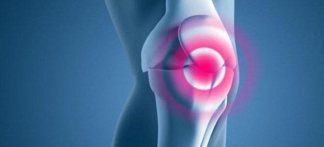 Что такое хондромаляция коленного сустава