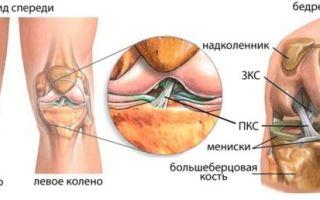Разрыв передней крестообразной связки (частичный или полный)