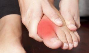 Почему болит сустав большого пальца на ноге и как его лечить