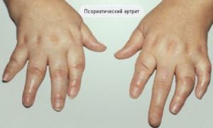 Псориатический артрит: симптомы, причины, лечение