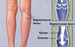 Почему гудят ноги ниже колен