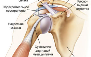 Как лечить неврит плечевого сустава