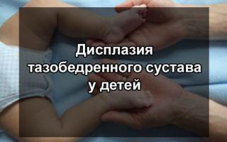 Дисплазия тазобедренных суставов у детей: симптомы, лечение, причины