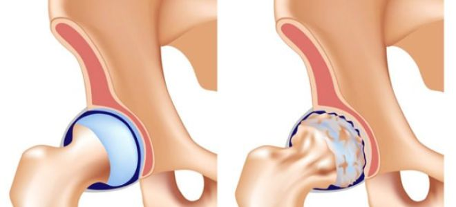 Лечим артроз тазобедренного сустава (Коксартроз): симптомы и диагностика