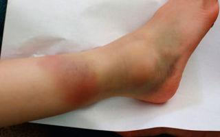 Вывих щиколотки ноги