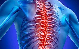 Что делать при межреберной невралгии: факторы развития заболевания, методы лечения