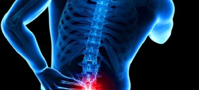 Что такое люмбализация: основные признаки заболевания, эффективное лечение патологии