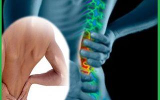 Помогают ли уколы при сильной боли в пояснице?