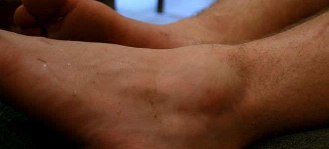 Что делать если отекают ноги от колена до щиколотки