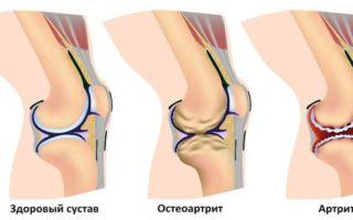 Боли и хруст в коленных суставах