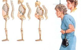 Особенности сенильного остеопороза