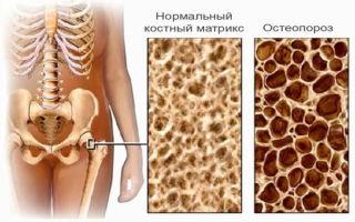 Основные причины возникновения остеопороза