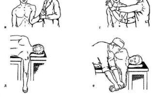 Вправление вывиха плеча — первая помощь больному, восстановление и реабилитация плечевого сустава