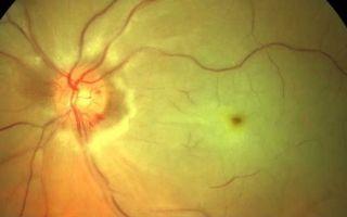 Что такое миодистрофия: причины и эффективные методы лечения