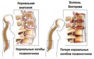 Симптомы болезни бехтерева (анкилозирующего спондилоартрита)