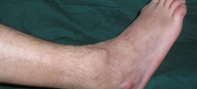 Что такое гематогенный остеомиелит: основные признаки недуга, методы лечения