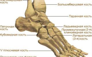 Боль в плюсневой части стопы