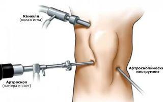 Артроскопия коленного сустава: этапы восстановление после операции