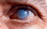 Чем лечить ожог глаз сваркой, какие капли использовать?