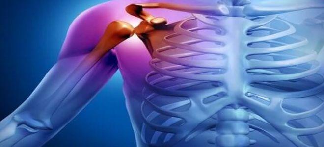 Что такое синовит плечевого сустава: основные причины заболевания, способы эффективного лечения