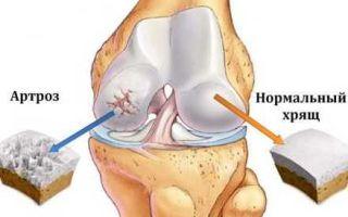 Острая боль в коленях при ходьбе