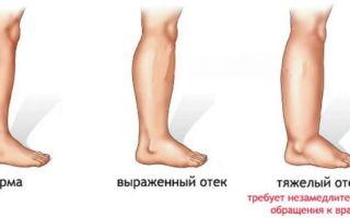 Почему могут отекать ступни ног у женщин