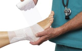 Как различить перелом и вывих и оказать первую помощь