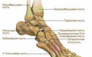 Боль в подъеме стопы