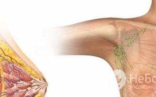 Симптомы и признаки межреберной невралгии