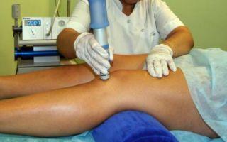 Комплексное лечение гонартроза колена