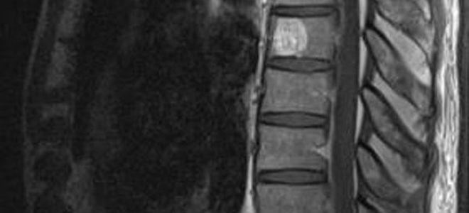 Что такое гемангиомы тел позвонков: развитие патологии, методы лечения