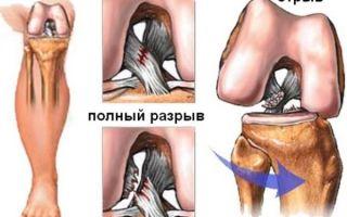Надрыв связок коленного сустава и лечение травмы