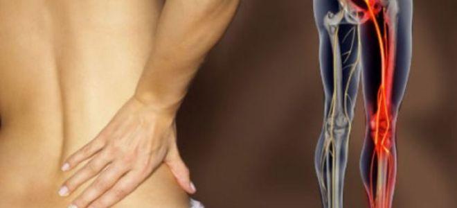 Что делать если болит поясница и отдает в ногу?