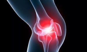 Лечение при остеоартрозе коленного сустава 2 степени