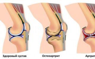 Оссалгия или боль в костях