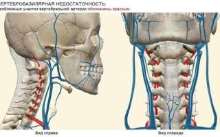 Вертебро-базилярная недостаточность при шейном остеохондрозе