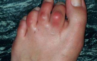 Воспаление суставов пальцев на ногах