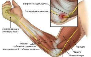 Основные причины боли в локтевом суставе