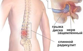 Симптомы и лечение поясничного радикулита
