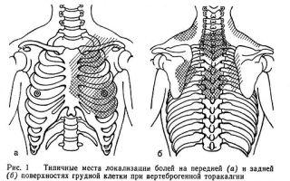 Вертеброгенная торакалгия